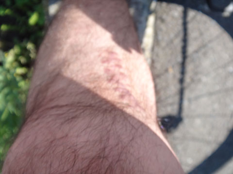 ちょっと汚いけど,おいらの左脚。手術跡がいまだに痛い・・・(涙)